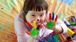 L'Islanda sarà il primo Paese europeo senza bambini affetti dalla sindrome di