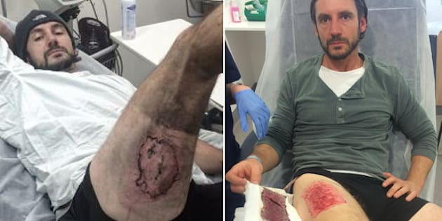 Gareth Clear's injury and his skin graft.