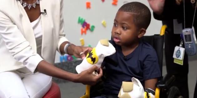 Greffé des deux mains, cet enfant peut manger, écrire et s'habiller