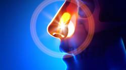 La sindrome rino-bronchiale: una correlazione tra alte e basse vie