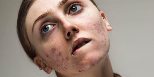 Louisa Northcote porte beaucoup de fond de teint sur les podiums, où elle défile en tant que mannequin, mais a décidé de porter un mouvement de libération de l'acné sur Instagram.