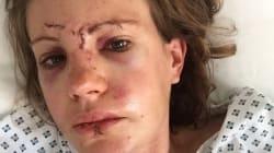 Cette cycliste a frôlé la mort et elle a un message pour les