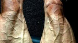 FOTOS: Las secuelas del Tour de France en las piernas de los