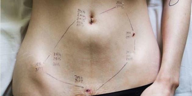 Cette photo bouleversante témoigne de la dure réalité de l'endométriose