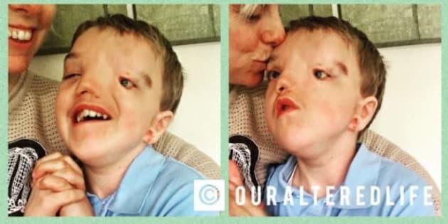 Instagram censure la photo de son enfant, atteint du syndrome de Goldenhear