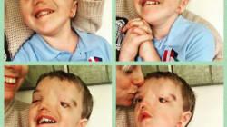 Instagram censure la photo de cet enfant