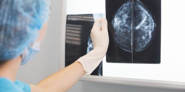 Une erreur dans le dépistage du cancer du sein aurait écourté entre 135 et 270 vies au Royaume-Uni