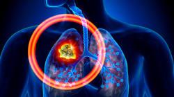 Il tumore al polmone resta il