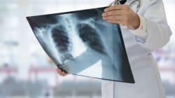 Infezioni delle vie respiratorie e insufficienza