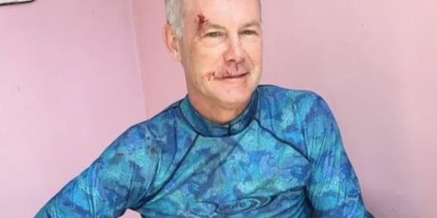 Dr. Steven T. Cutbirth of Waco, Texas, showed off some gnarly wounds after being attacked by a bull shark in the Bahamas.