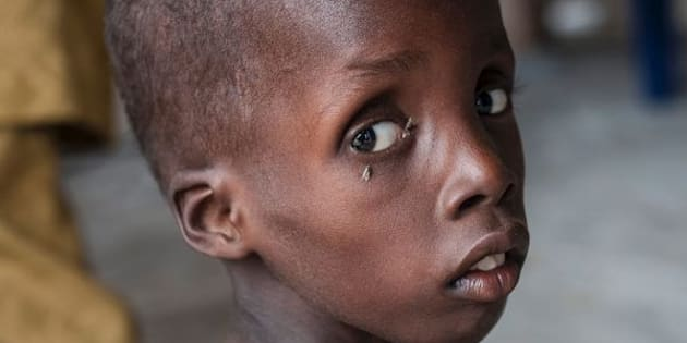 A boy suffering from severe acute malnutrition at one of UNICEF'snutrition clinics in the Muna informal settlement on the outskirts of Maiduguri on June30.