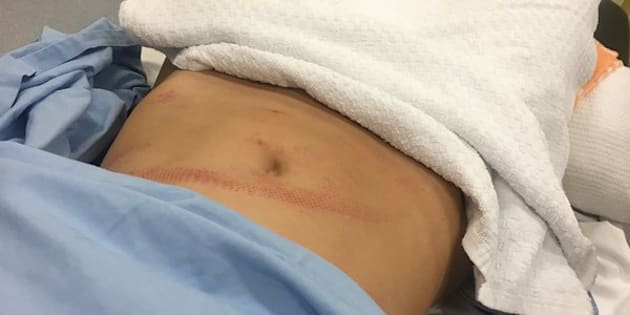 Jockey Michelle Payne tweeted a picture of her injured abdomen, pointing out this happened through a protective vest.