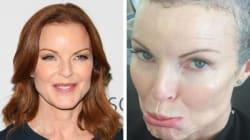 Bree di Desperate Housewives senza capelli per il cancro:
