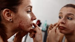 Acne Can Affect Your Mental Health, But There Is A Lot Of Help Out