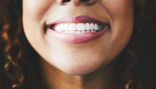 54% dos brasileiros que perderam dentes afirmam que sorrir em público é