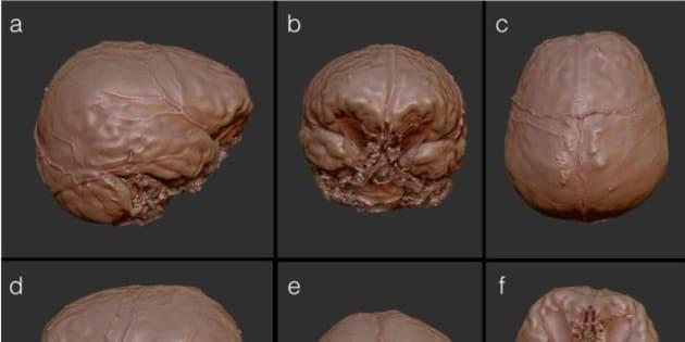 Des chercheurs ont reconstitué virtuellement le cerveau de Descartes, voici leurs conclusions