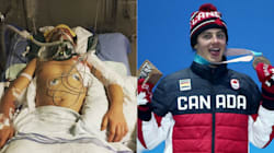 11 Months Ago, Mark McMorris Almost Died. Today, He's On The