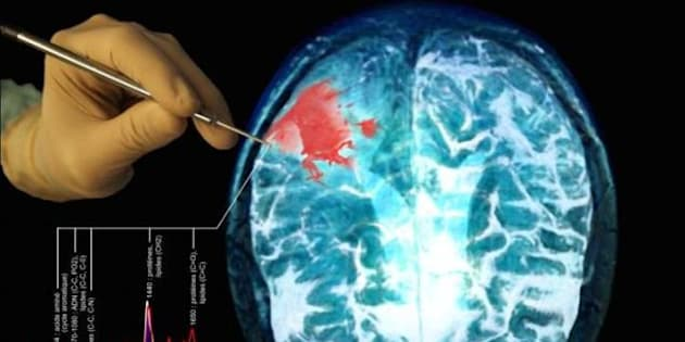 Représentation du travail de la sonde détectant des cellules cancéreuses au cerveau.