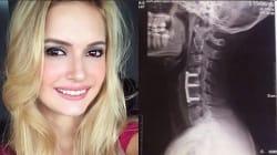Una ragazza di 23 anni ha rischiato di rimanere paralizzata dopo un incidente in