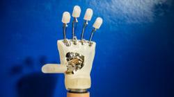 È stata impiantata la prima mano bionica in Italia su una