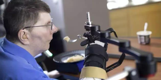 Un tétraplégique retrouve l'usage de son bras et de sa main grâce à des implants cérébraux