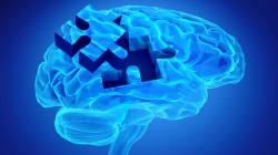 À quel âge la maladie d'Alzheimer se déclarera? Des chercheurs ont mis au point un test encore plus