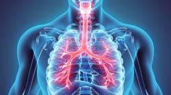 Prescrizione e monitoraggio nelle infezioni respiratorie: la terapia