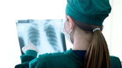 Una mujer muere de cáncer tras recibir un trasplante de pulmones de una