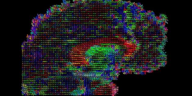 Cette start-up veut télécharger votre cerveau (mais doit vous tuer avant)