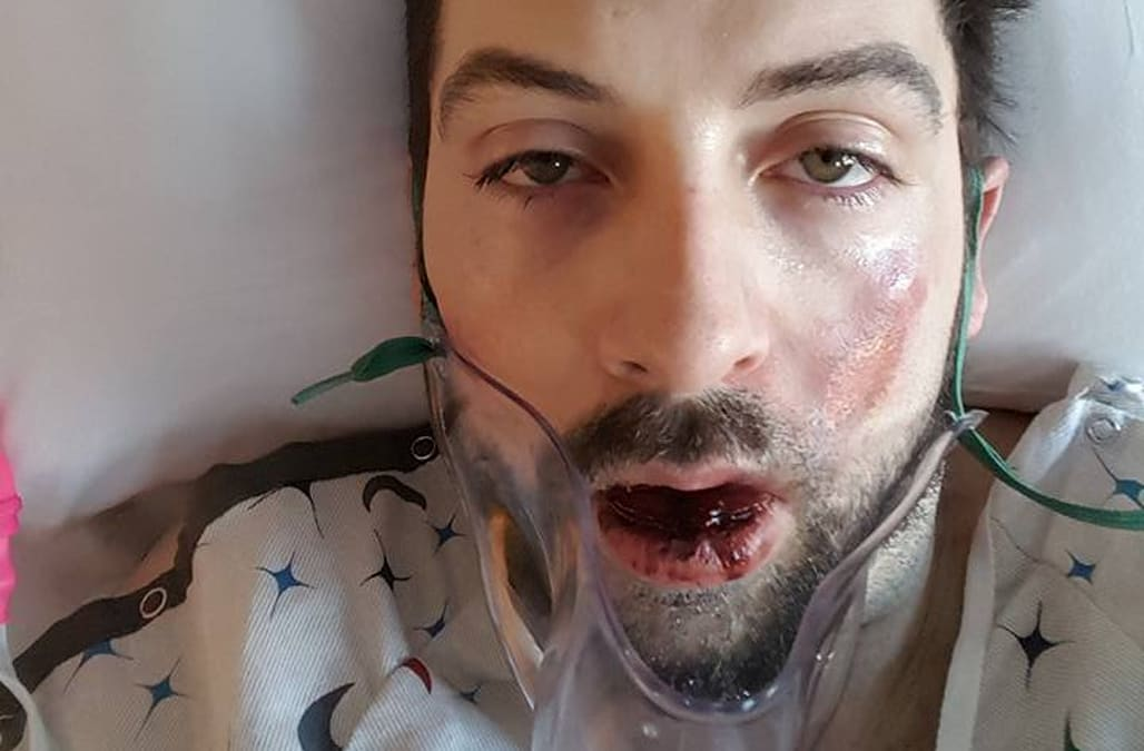 Father loses seven teeth and suffers severe burns after vape pen explodes  in his face