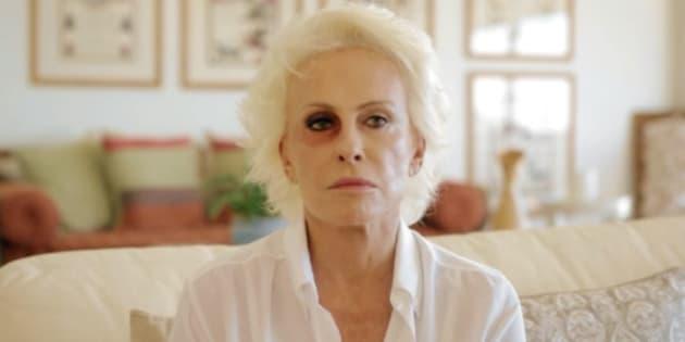 Ana Maria assusta fãs ao aparecer com olho roxo em campanha contra violência de gênero.