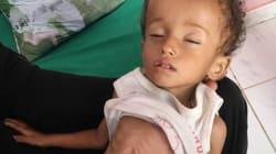 El cólera y el hambre en Yemen no son un cuento y la BBC ha conseguido entrar y