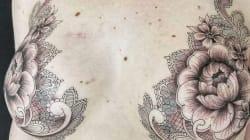Ces tatoueurs font des prouesses pour transformer les cicatrices laissées par le cancer du