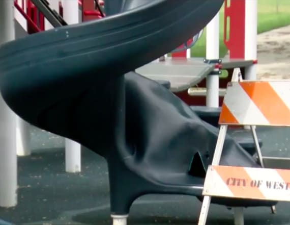 9-year-old burned by exploding playground slide