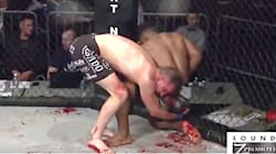 MMA Match Becomes Slippery Bloodbath, And You Might Want To Look