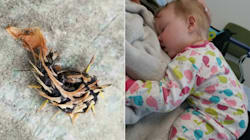 B.C. Baby Has Surgery After Putting Spiny Caterpillar In Her