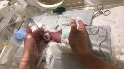 Le plus petit bébé au monde est sorti de
