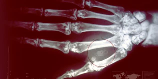 Chip con información implantado en una mano.