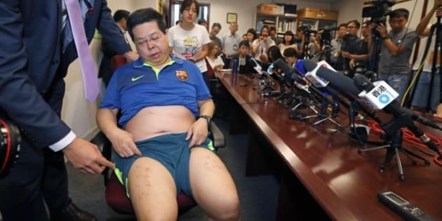 Howard Lam, durante la comparecencia en la que ha denunciado su caso.