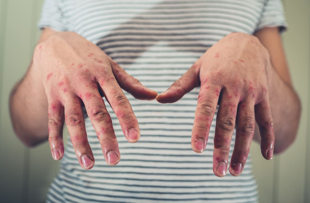 Heres Everything You Need To Know About Hand Foot And Mouth Disease