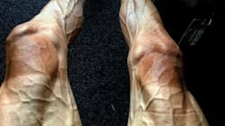 ¿Por qué se ven así las piernas de Pawel