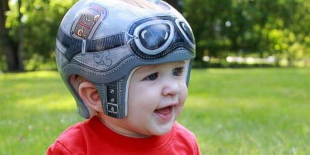"""Aujourd'hui, sa mère le décrit comme un """"garçon très heureux"""" qui va """"très bien"""" avec son casque."""