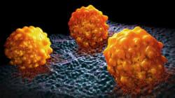 Les médecins font scintiller les tumeurs pour les