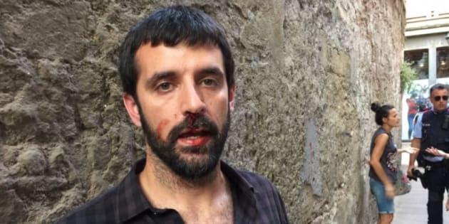 Jordi Borràs, tras la agresión.