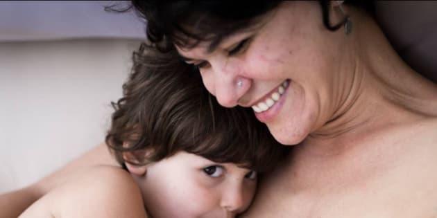 Une photographe et son modèle racontent avoir passé outre leur acné persistante.