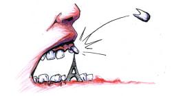 400€ à Brest, 800€ à Paris pour une couronne... le coût des soins dentaires fait le grand