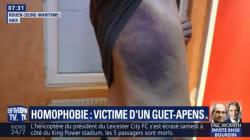 Un jeune homme dénonce une agression homophobe très violente à