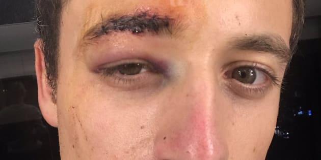 Le journaliste Hugo Clément blessé au visage — Violences à Paris