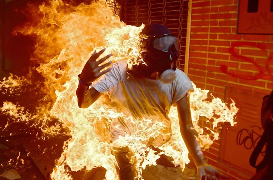 TOPSHOT - A demonstrator catches fire during clashes with riot police within a protest against Venezuelan President Nicolas Maduro, in Caracas on May 3, 2017. Venezuela's angry opposition rallied Wednesday vowing huge street protests against President Nicolas Maduro's plan to rewrite the constitution and accusing him of dodging elections to cling to power despite deadly unrest. / AFP PHOTO / RONALDO SCHEMIDT        (Photo credit should read RONALDO SCHEMIDT/AFP/Getty Images)