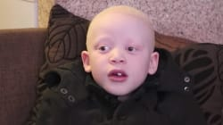 WATCH: This 7-Year-Old Boy Is An Activist Against Albino